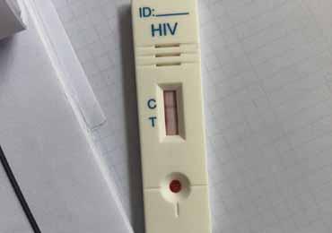 艾滋病试纸半小时后变阳 虚惊一场