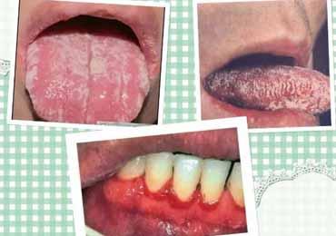 艾滋病看舌头可以判断出来吗