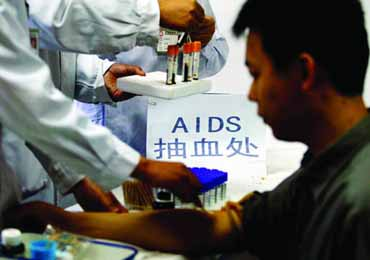 担心感染艾滋病应该去哪里做检查