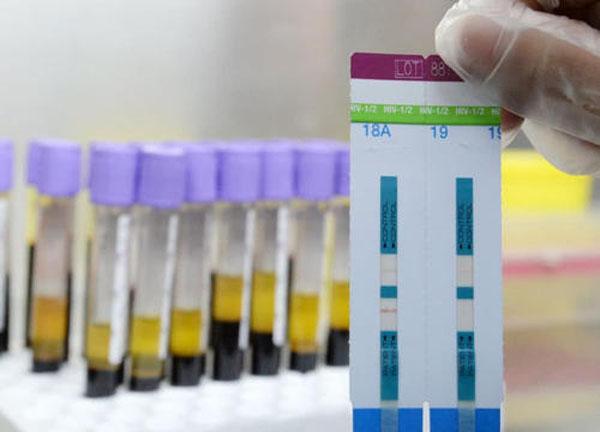 艾滋感染6年试纸测不出来吗
