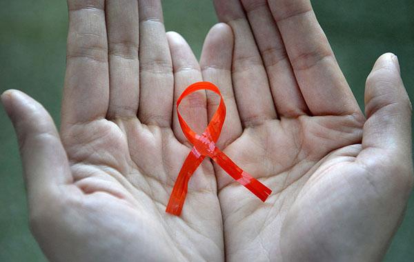 感染艾滋病