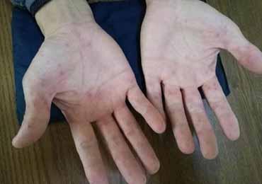 艾滋在手臂表现症状有哪