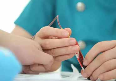 艾滋病自我检测方法 知晓感染状况