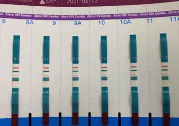 19天雅培四代阳性 抗原区有红线