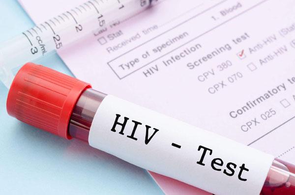 艾滋病自测.jpg