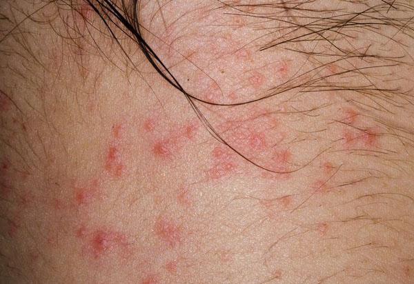 颈部湿疹.jpeg