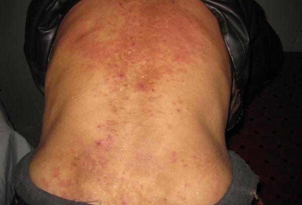 背部湿疹.jpg