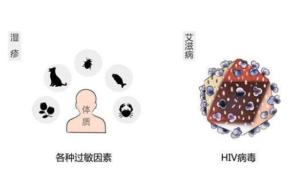 过敏和hiv病毒.jpeg