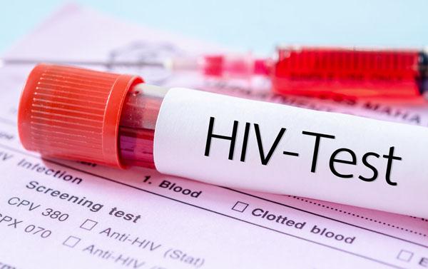 艾滋病检测.jpg