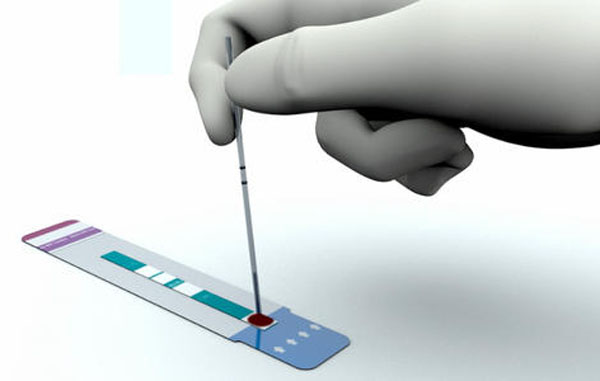 艾滋自我检测