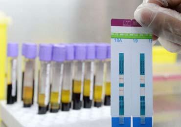 hiv试纸阳性立即显现正常吗