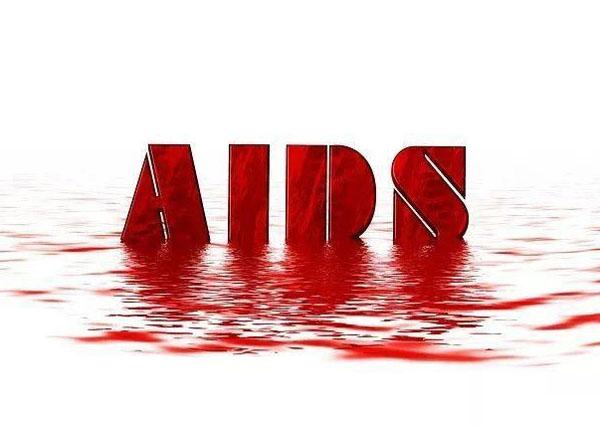 恐惧hiv感染.jpg