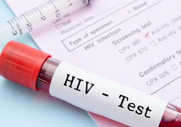 这4类人群应该定期做艾滋病检测
