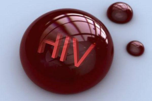 hiv抗体检测.jpg