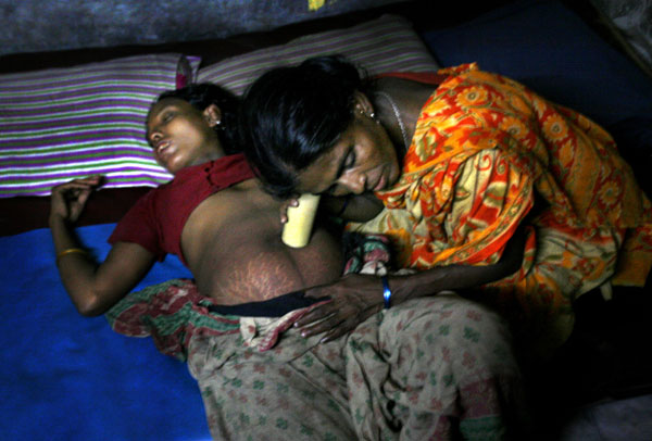 艾滋病女人孕妇.jpg