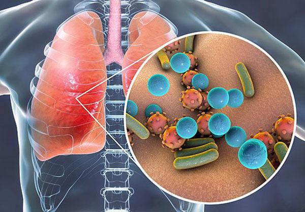 人体感染Hiv病毒.jpg