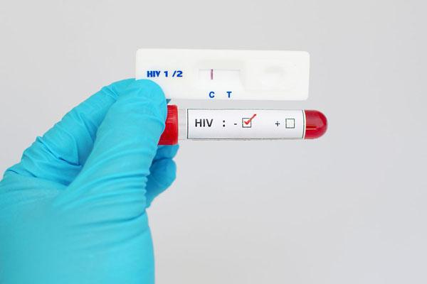 艾滋病试纸检测结果.jpg