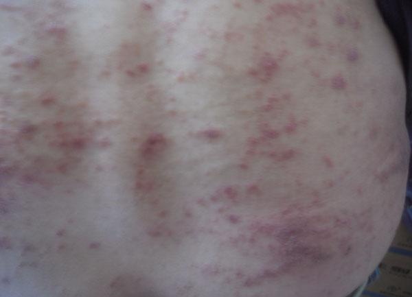 皮疹.jpg