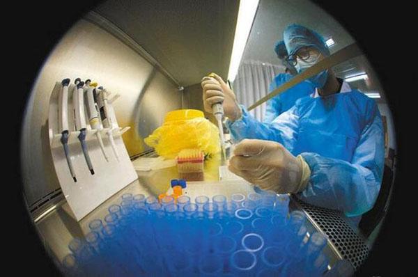 hiv确诊试验.jpg